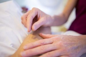 acupuncturist's hand with a needle